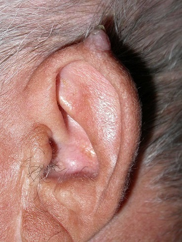 squamous_cell_carcinoma_on_ear